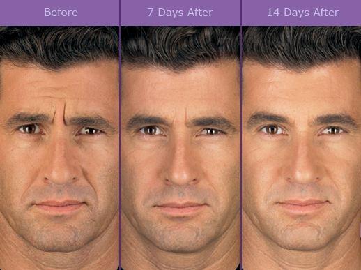 Botulinum Toxin Perfect Face Facial Laser Aesthetics